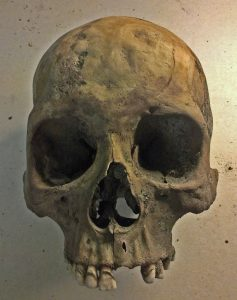 Een schedel aangevreten door syfilis